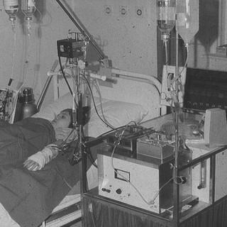 hemodialysis first time
