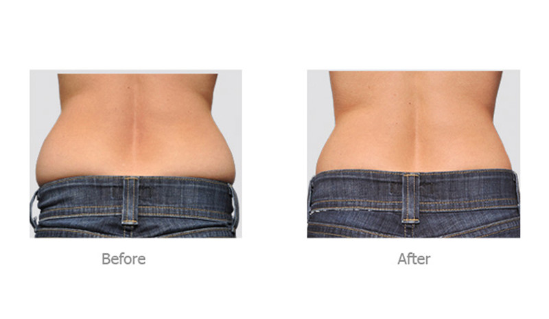 cavitation-before-after.jpg