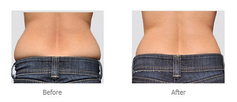 cavitation-before-after_edited.jpg
