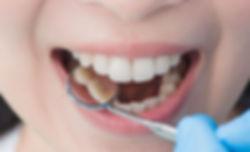 Tipps für gesunde Zähne@2x.jpg