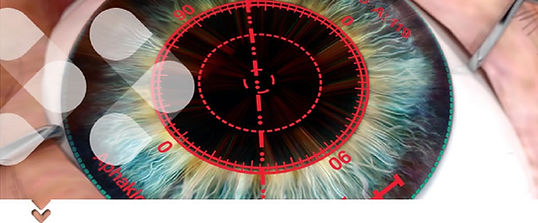 ORA cataract surgery tool
