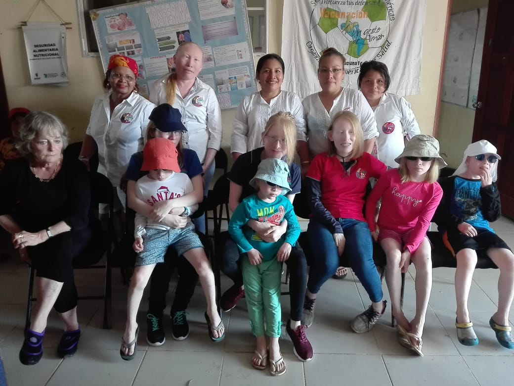 Sos Albinos IMG-20190613-WA0039