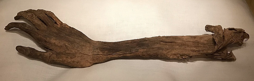 Severed arm from Antietam