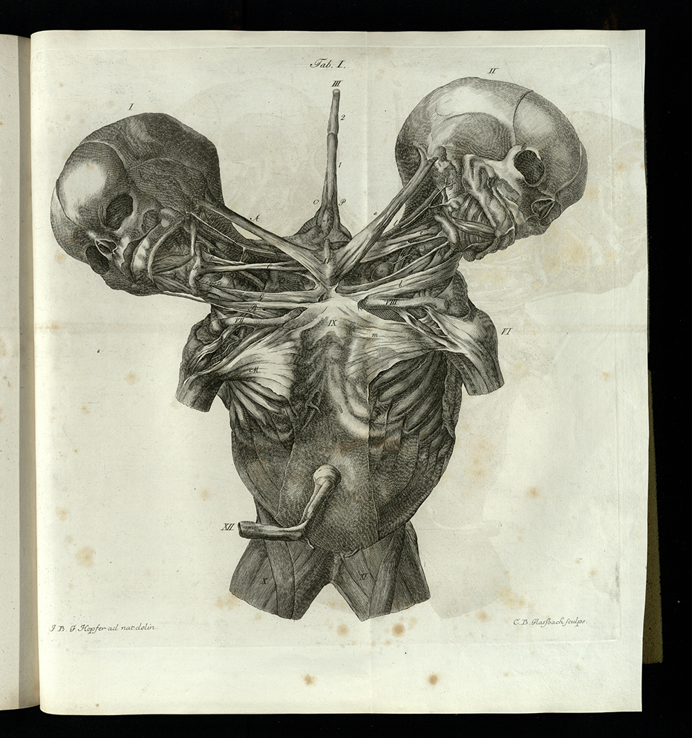 Musculature of Conjoined Twins