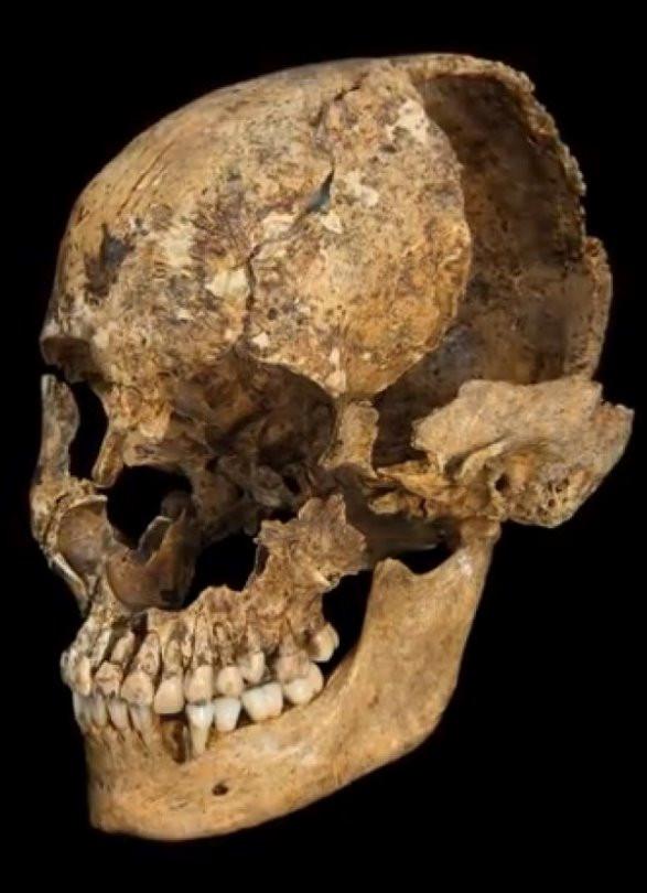 Skull of cannibalism victim