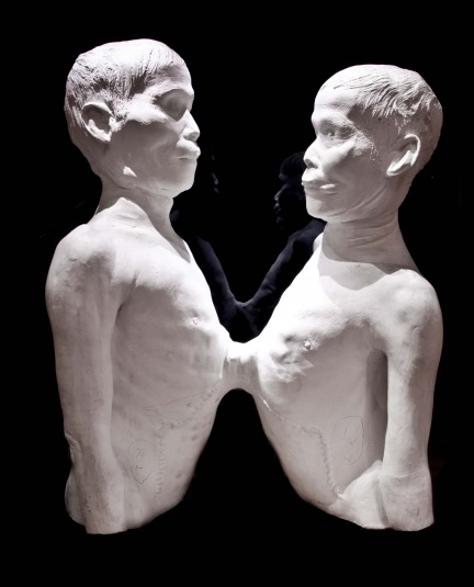 Death Cast of Chang and Eng Bunker