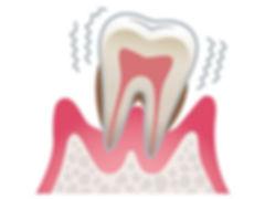 gum_disease.jpg