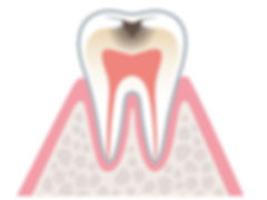 cavity.jpg