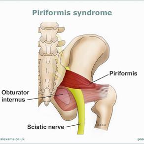 Piriformis syndróm – názov strašidelný, riešenie jednoduché