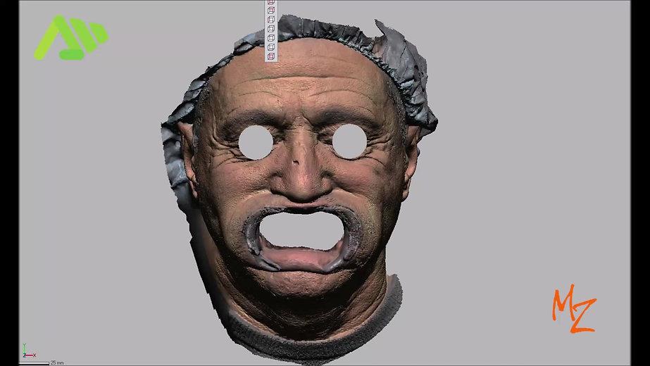 Il vero obiettivo della scansione faciale è quello di individuate punti antropometrici precisi per ricavare riferimenti per replicarli con precisione sull'articolatore virtuale
