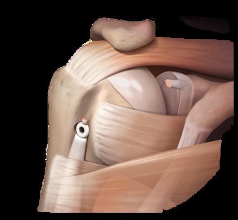 proximal_biceps_tenodesis_0-large.png
