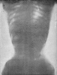 x-ray of a woman's torso  wearing a corset
