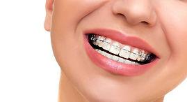 ortodonzia.jpeg
