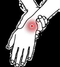 carpal_hand_pain_nb.png
