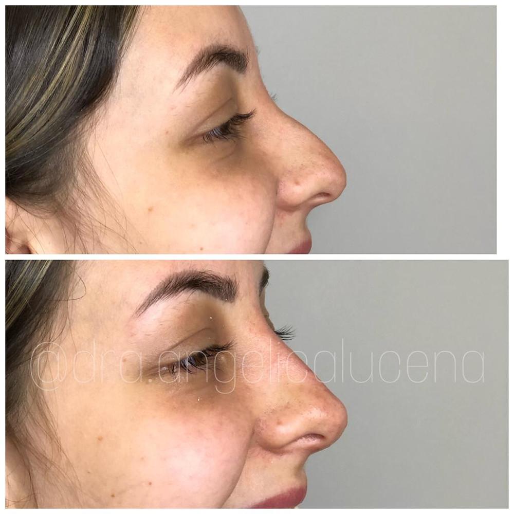 Bioplastia nasal , correção de nariz , rinomodelação