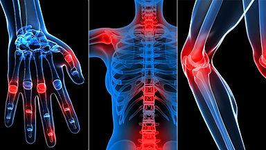 Rheumatic-Diseases.jpg