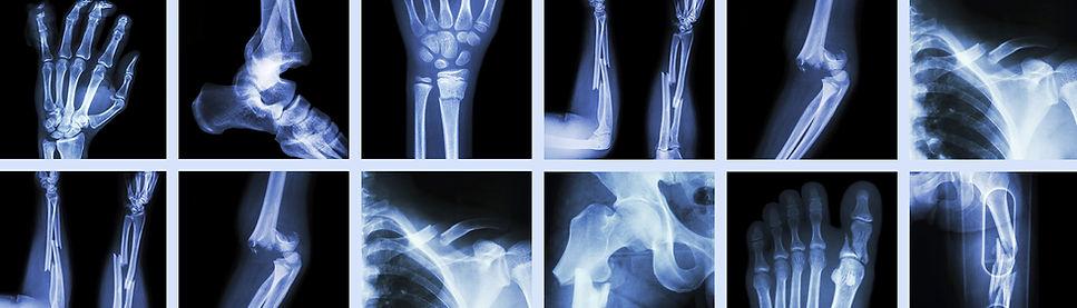 Medstar_Orthpaedic-treatments.jpg