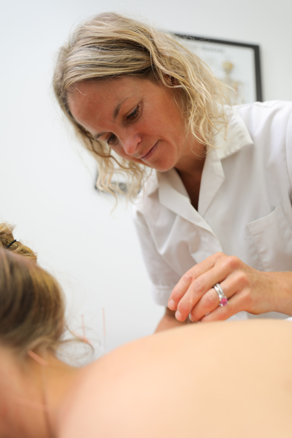 Acupuncture for pain, onebody clinic