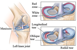 Why you need to strengthen your knee after meniscus surgery!