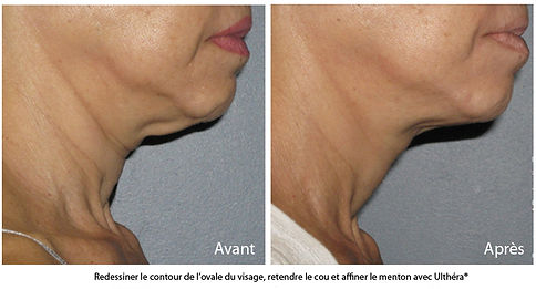 lifting-ovale-visage-centre-ultherapy-pa