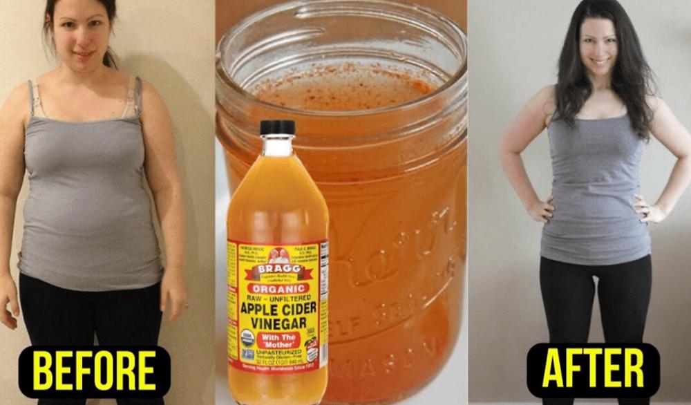 Weight Loss Apple Cider Vinegar Diet