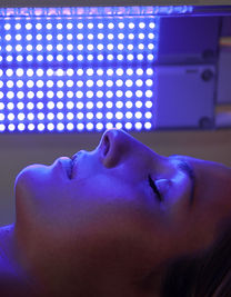 Blu-U Treatment for Acne