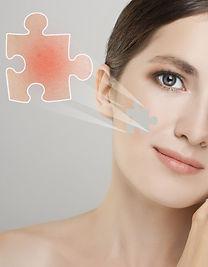 Photo Facial Treatments for Rosacea