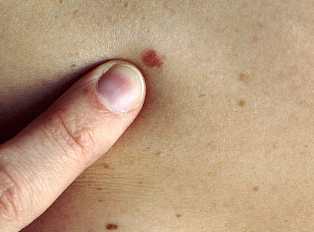 Skin Cancer Awareness Month: Why survival rates for melanoma are increasing