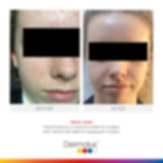 Acne Treament Facial in Hampshire at Pamela Moss Skin Health