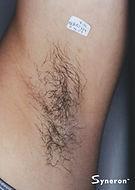 hairy armpit