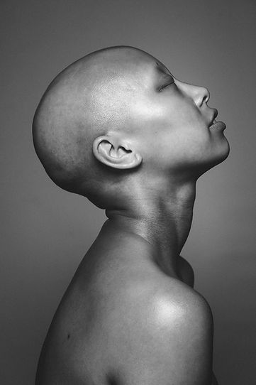 Alopecia Photographer