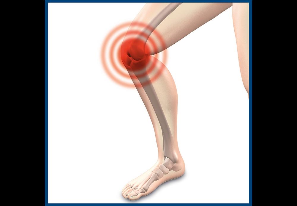 kneepainillustration