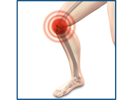 A Natural Alternative to Knee Replacement Surgery