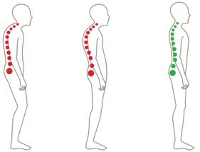 Einfache Tipps gegen Nackenschmerzen.