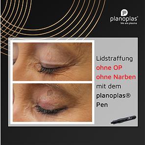 SM-Lidstraffung planoplas.png