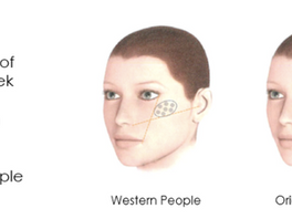 <Insights> Advanced Aesthetic Injectables for the Treatment of Buccal and Lateral Cheek Hollow