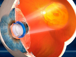 Telescope implant brings hope to age-related macular degeneration