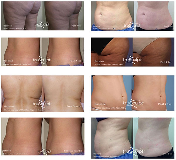 TruSculpt iD Before and After Photos
