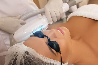 Fotofacial IPL Skin Treatment