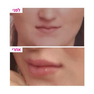 ענבל-שפתיים3.jpg