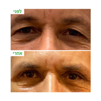 ענבל-עפעפיים עליונות10.jpg