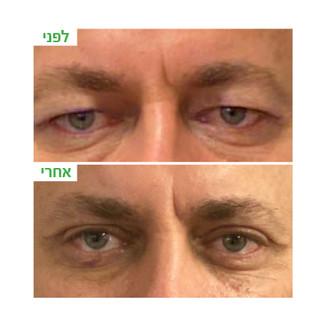 ענבל-עפעפיים עליונות6.jpg