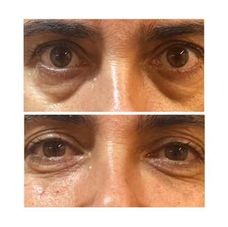 ענבל-שקעים מתחת לעיניים3.jpg