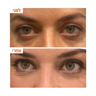 ענבל-שקעים מתחת לעיניים2.jpg