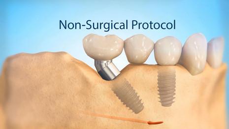 Non-Surgical Protocol