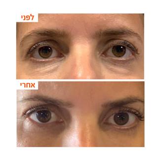 ענבל-שקעים מתחת לעיניים.jpg