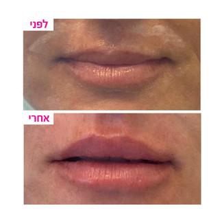 ענבל-שפתיים2.jpg