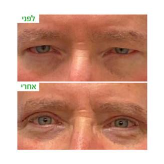ענבל-עפעפיים עליונות8.jpg