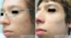 Acne4 - Pair.png