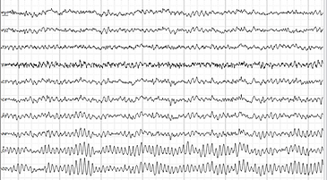 Human_EEG_with_prominent_alpha-rhythm_ed